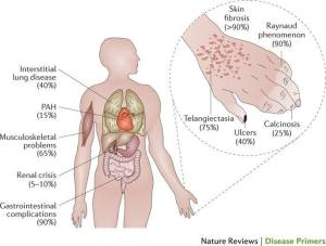 rsa_sclerodrma-symptoms-and-their-frequency